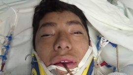 Teenager Who Snuck Out to Rescue Quake Victims Still in Coma