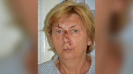 Woman Found Injured on Croatian Island Doesn't Know Her Name or How She Got There